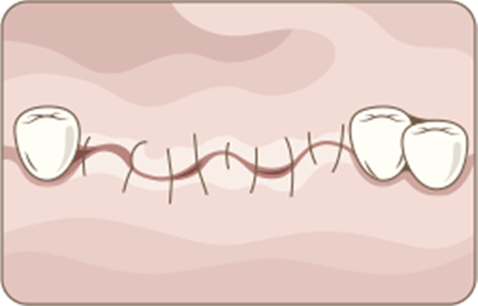 Conventional Dental Implant Surgery